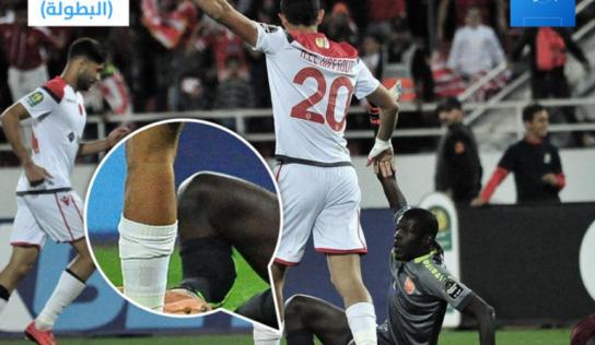 Arrêt sur image: l'horrible fracture de Khadim Ndiaye contre Wydad